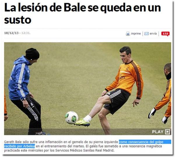 Arbeloa lesionó a Bale