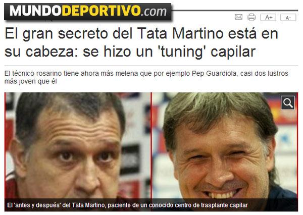 El implante capilar del Tata Martino